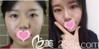 上海艺星医疗美容医院李建兵切开双眼皮真人案例