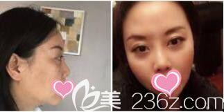 上海艺星医疗美容医院徐熠涵面部线雕真人案例