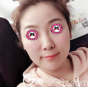 我在北京百达丽找张丽丽做了面部埋线提升后脸色肤质真是变化不少