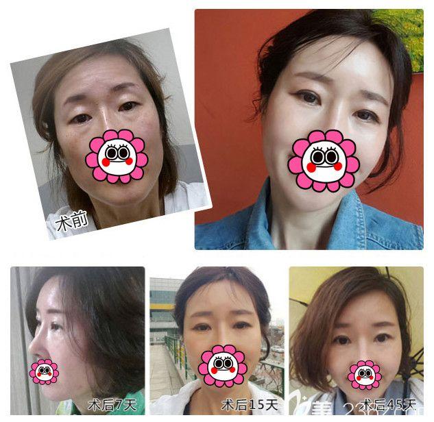 听说南通4A级医院维多利亚做去眼袋效果不错,母女俩到院一起改善了遗传大眼袋