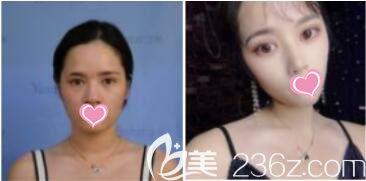 上海艺星医疗美容医院彭才学假体隆鼻真人案例