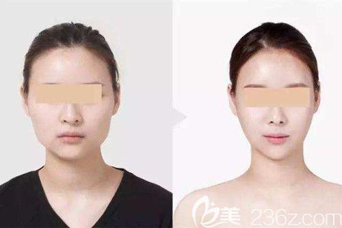 唐山苏亚美联臣推出2019寒假春节整形优惠价格表 瘦脸针和吸脂都只要980元