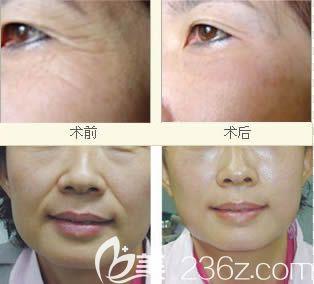 黄南儒教授注射除皱案例效果对比图