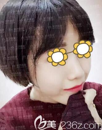 分享我找长沙真爱整形医院李瑶做线雕隆鼻+面部埋线提升术后36天恢复效果过程!