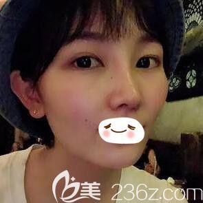 一个月前找长沙艺星整形医院秦晓东做了肋软骨隆鼻+美杜莎内眼角效果真不错,跟大家分享下!