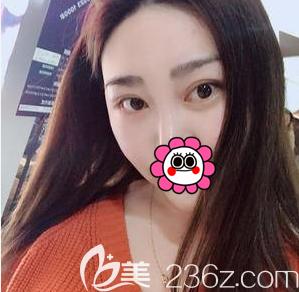 面诊了苏婷医生后我就在北京百达丽做了面部吸脂+眶隔脂肪释放祛眼袋