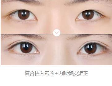 郑州天后医疗美容医院白俊涛双眼皮整形加开眼角案例
