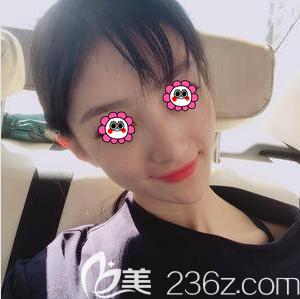 我找北京京通李茵做自体肋软骨隆鼻前有考虑自体肋软骨隆鼻是否安全