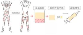 自体脂肪移植的示意图