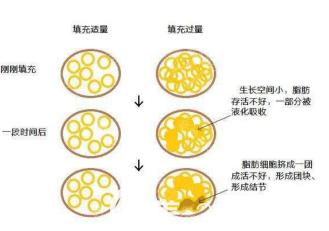 自体脂肪结节和液化的示意图