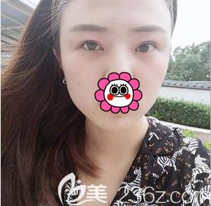 我是了解了不少人对北京长虹医院评价后才找张守玲做了双眼皮修复