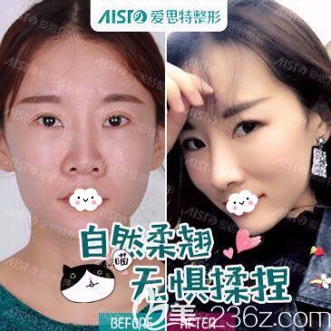 武汉爱思特杨水斌鼻综合修复失败鼻案例效果对比图