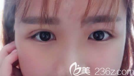 南宁梦想整形唐超给我做的7mm全切双眼皮+开眼角20天恢复效果真是太棒啦!