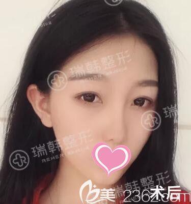 看大一学生在海南瑞韩医学美容医院做自体脂肪填充面部+萝莉大眼后变身大眼萌妹的经历过程!