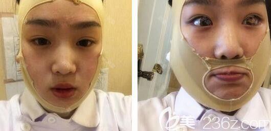 安徽维多利亚整形面部吸脂后第3天照片