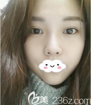 分享一下韩国原辰埋线法双眼皮+颧骨+下颌角+贵族手术项目的真人案例