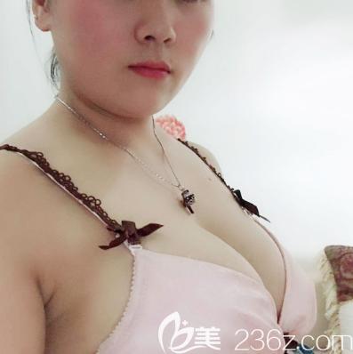 公开我在广州美恩找许扬滨教授做胸部乳房奥美定取出和植入假体隆胸的亲身经历