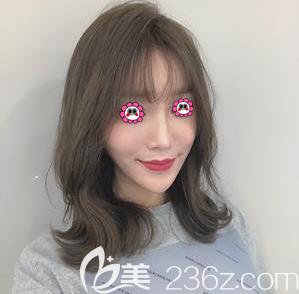 你若想了解北京百达丽鼻整形效果可以参考我找苏婷做鼻修复第95天样子