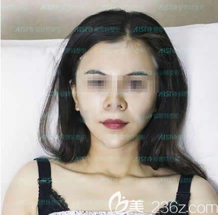 面部填充是脂肪好还是玻尿酸好?围观我在南宁爱思特整形做全脸自体脂肪填充第5天消肿照片