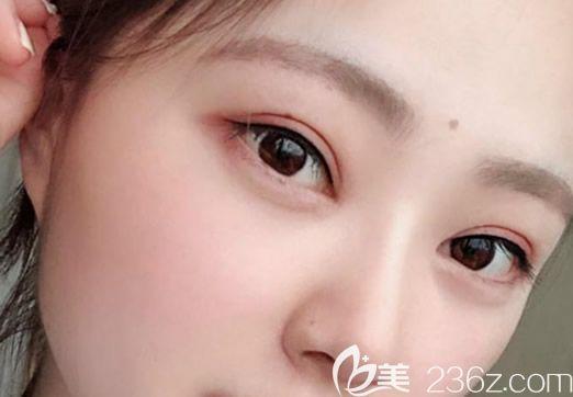 内蒙古永泰整形医院王春燕院长给我做的全切双眼皮和开眼角三个月了 效果自然完美