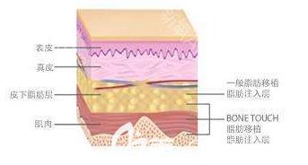 自体脂肪作用在皮肤的部位示意图