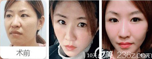 亚洲脸部模特素材