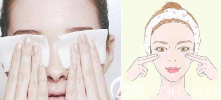 双眼皮术后按压和冰敷是一定要的
