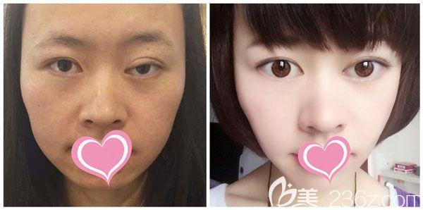 杨继红做双眼皮失败修复+激光祛斑案例