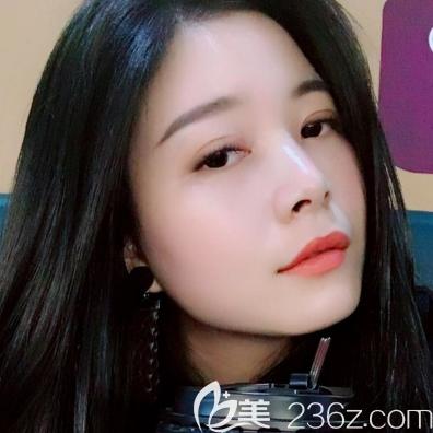 珠海仁爱肖新春医生双眼皮案例一个月自拍