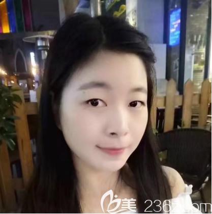 珠海仁爱整形美容门诊部肖新春术前照片1