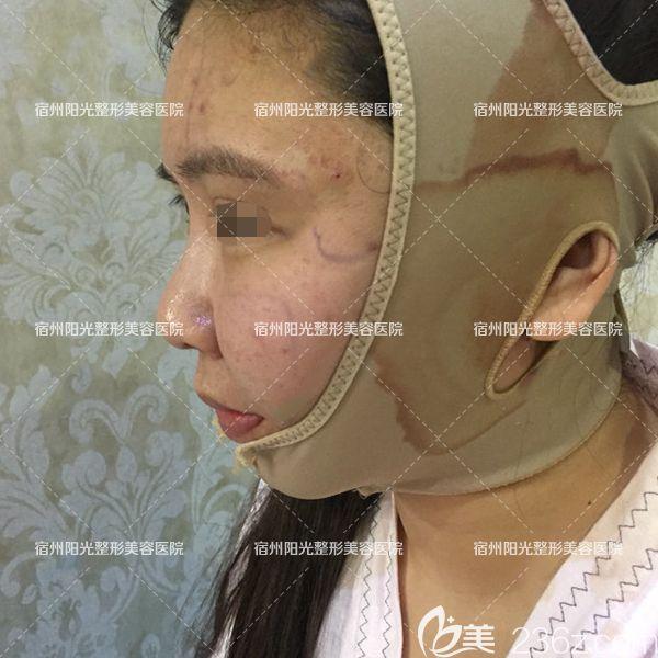 找蒋相锋做面部吸脂+全脸自体脂肪填充术后即刻照片