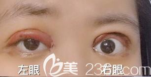 双眼皮术后血肿和感染的图片
