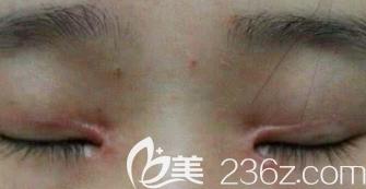 双眼皮术后疤痕增生的样子