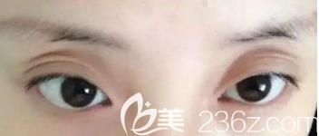 双眼皮术后三层和过宽的案例