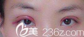 双眼皮术后发炎的样子