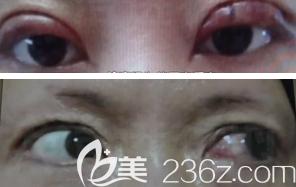小白双眼皮术后左眼不能闭合的样子