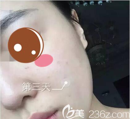 上海仁爱医院整形美容科刘建国水光针真人案例术后第三天