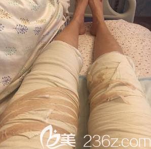 郑仕平医生给我做大腿吸脂第2天样子