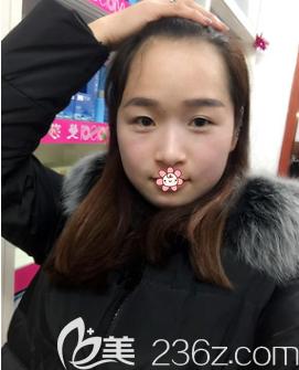 重庆艺星整形美容医院赵蓉术后照片1