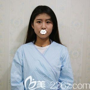荆州华美整形外科医院李杰术前照片1