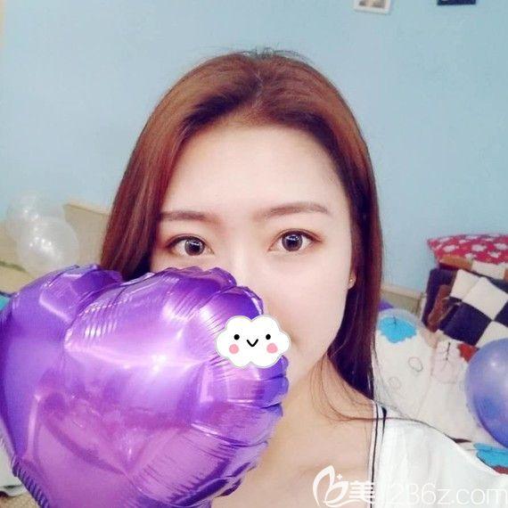 荆州华美李杰埋线双眼皮术后1月恢复照片