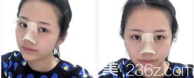 我在柳州华美做双眼皮和鼻综合术后第3天