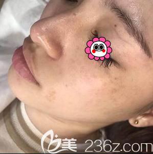 北京京通医院皮秒激光祛斑案例