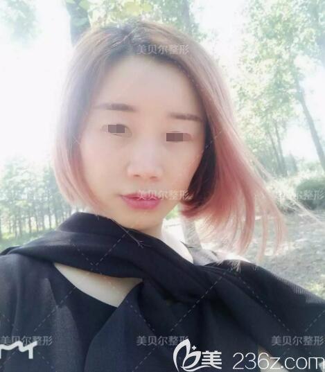 23岁的年纪38岁的脸,面诊苏州美贝尔医生李志勇填充脂肪后告别面部凹陷衰老及法令纹