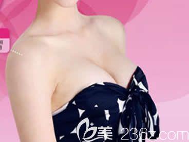 反馈:我在柳州华美整形做曼托水滴形假体隆胸术后1个月胸部变软手感自然