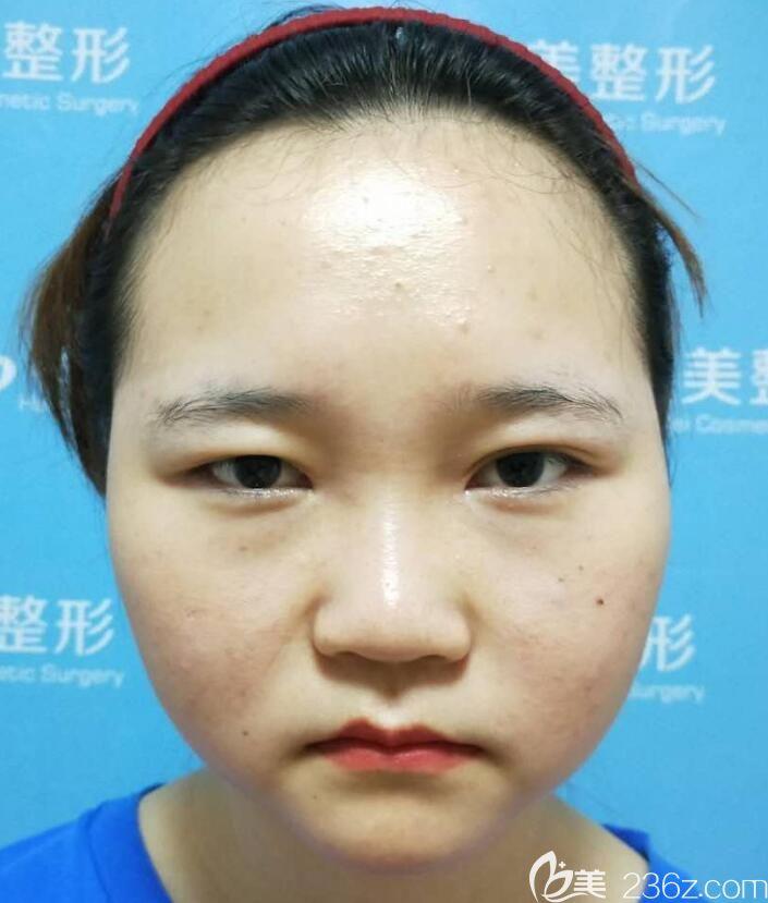 看过合肥恒美廖亚敏双眼皮案例让陈亮做了面部吸脂瘦脸,晒我180天恢复过程图