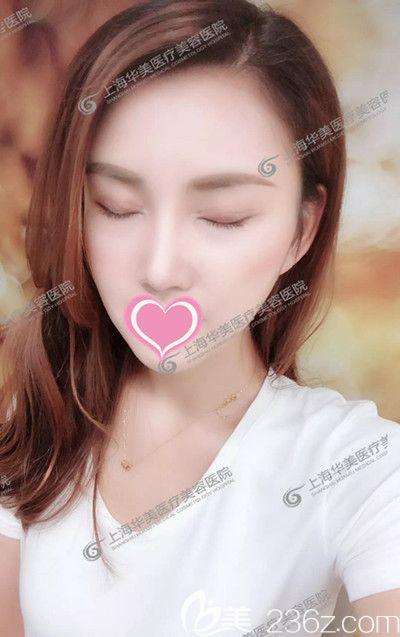 闺蜜说我在上海华美一次做了眼鼻综合+自体脂肪丰额头太阳穴是疯了,看到术后效果都闭嘴了