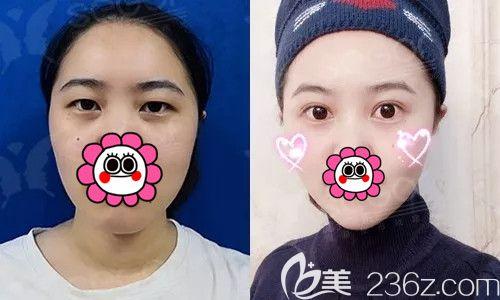 为什么PARK法双眼皮这么火?看常州曙光真人案例给你讲肿胀轻术后半月就能化妆