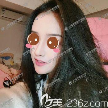 在上海华美做完鼻综+全脸面部自体脂肪填充四十二天后我就开直播当网红了