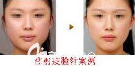 邯郸维多利亚2月14日情人节专场优惠来袭 580元的双眼皮让你超值变美